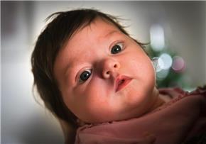 Schädelbruch Baby